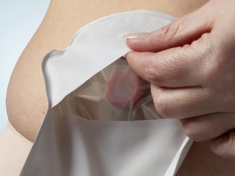 Una stomia: come deve gestirla correttamente il Paziente?