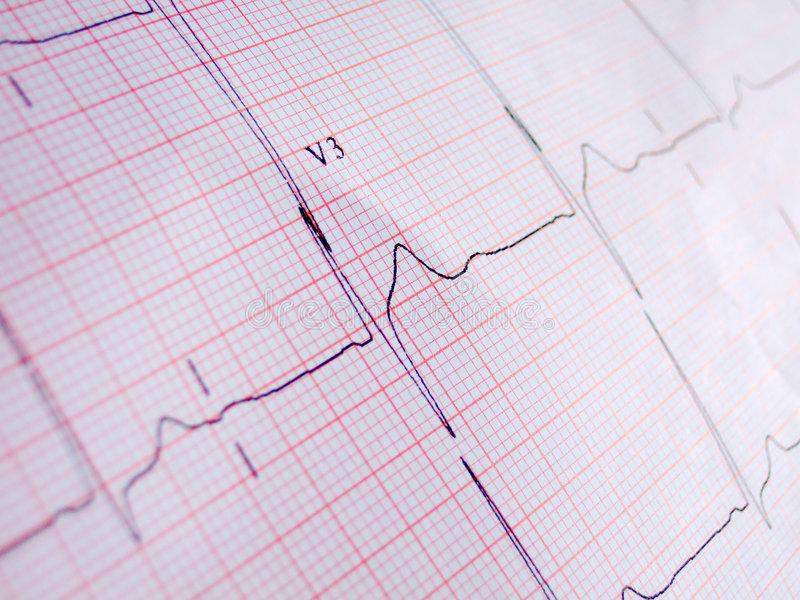 ECG elettrocardiogramma L'ECG: un esame diffusissimo!