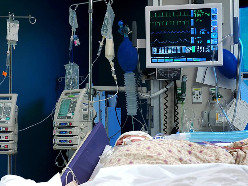 Pressione Arteriosa Cruenta: cos'è e come si misura.