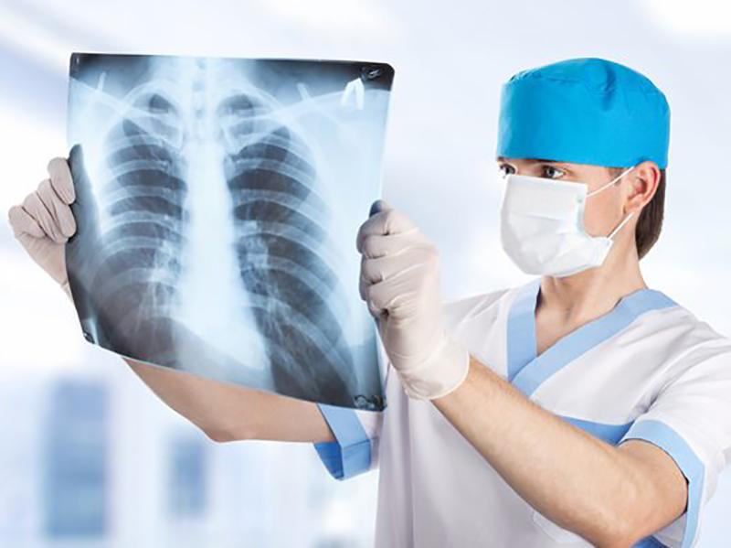 Tecnici Radiologia ed esubero formativo: pagati 6 euro, lettera a ministro Busetti