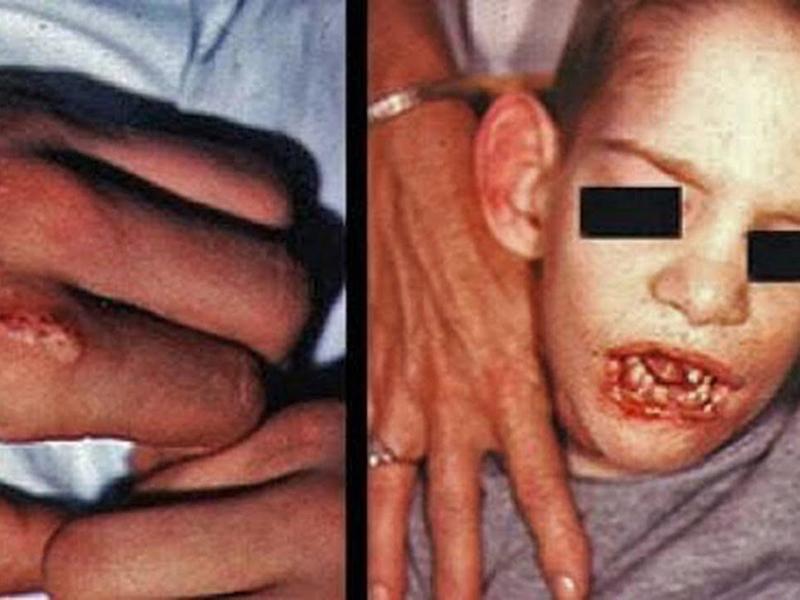 Malattia di Lesch-Nyhan: sabato 15 settembre al Gaslini il 1°open day.