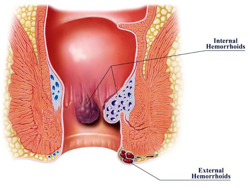 Emorroidi: dalle cause al trattamento dell'infiammazione.