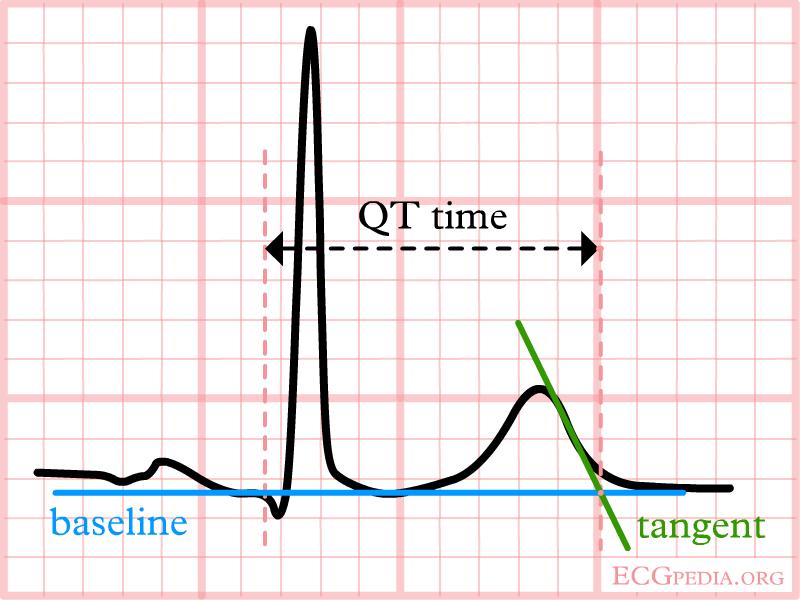 QT Lungo nell'ECG, può essere pericoloso!
