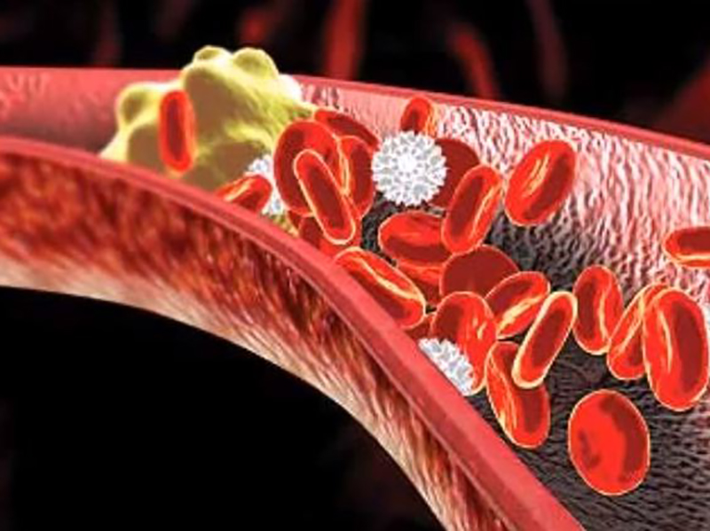 Vademecum. Colesterolo e trigliceridi: rischi e valori. Come leggere correttamente le vostre analisi.