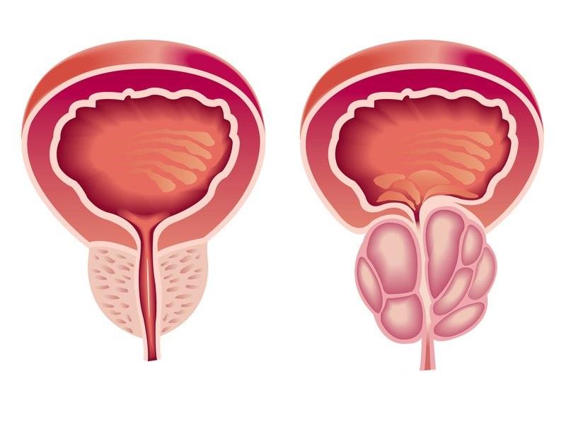 Ipertrofia prostatica benigna: quali rimedi?
