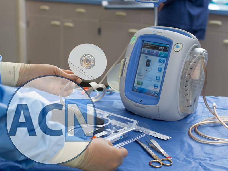 Infezioni ferite chirurgiche in Cardiochirurgia e utilizzo della Vac-therapy.