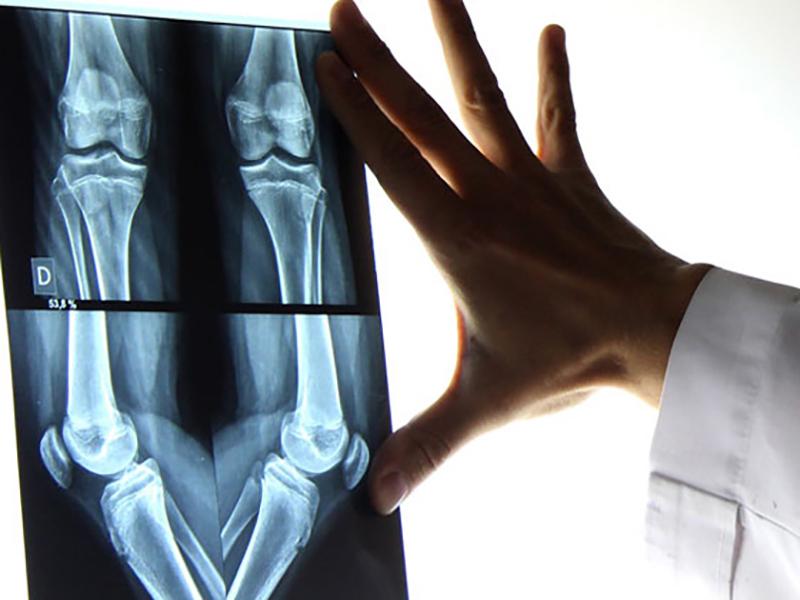 Tecnici di Radiologia: ai Medici sempre più spazi che competono a noi!