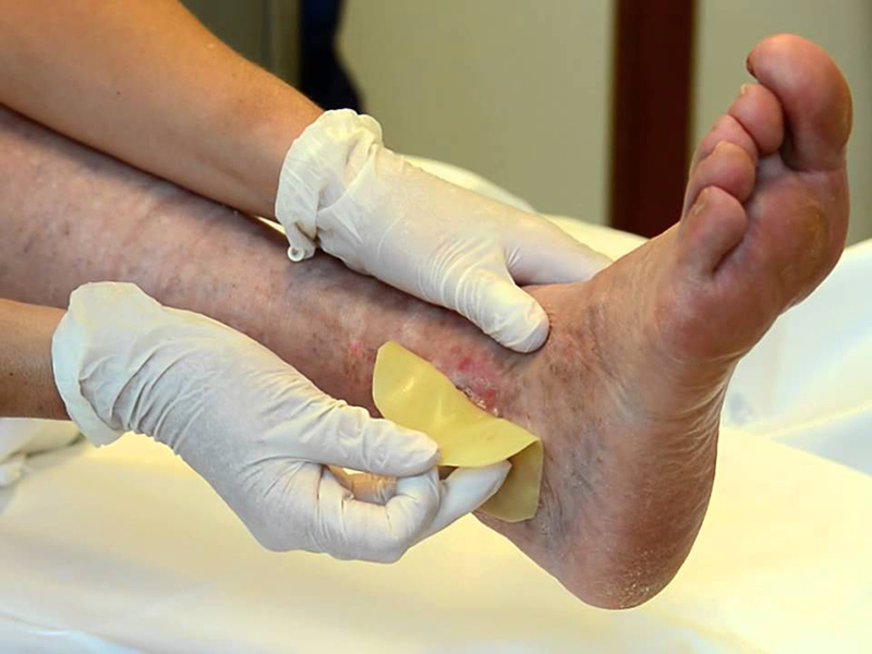 Gestione lesioni cutanee: 2 corsi IAWC per 10 ECM. Dedicato a Medici, Infermieri e Professioni Sanitarie.
