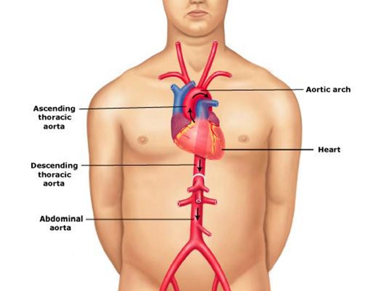 La contropulsazione aortica: tutto quello che c'è da sapere!