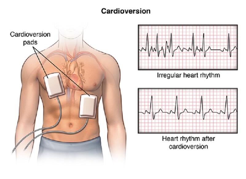 Cardioversione elettrica: ripolarizzazione e ripristino elettrico del cuore.