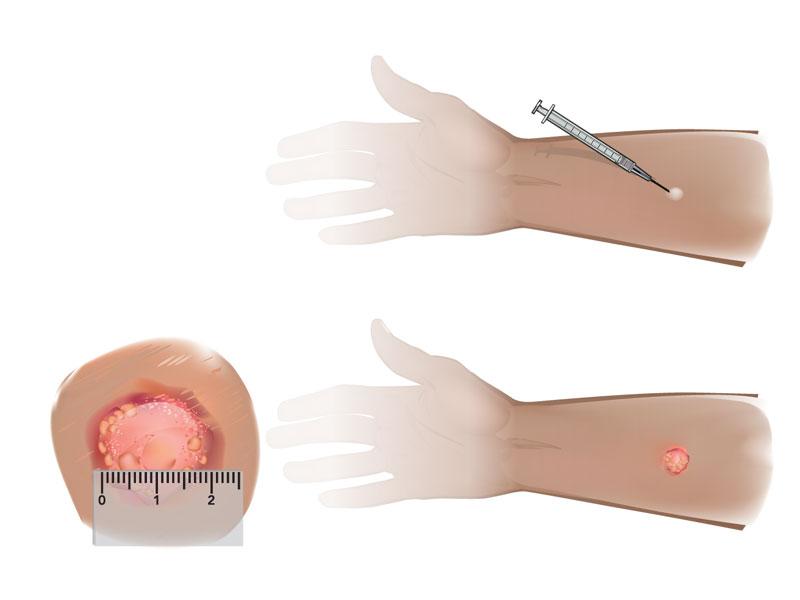 Mantoux: in cosa consiste il test per la tubercolosi (TBC).