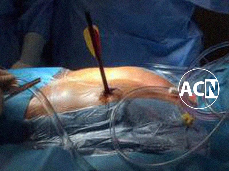 Una freccia nel cuore: Cardiochirurghi salvano Paziente. Cupido non centra!