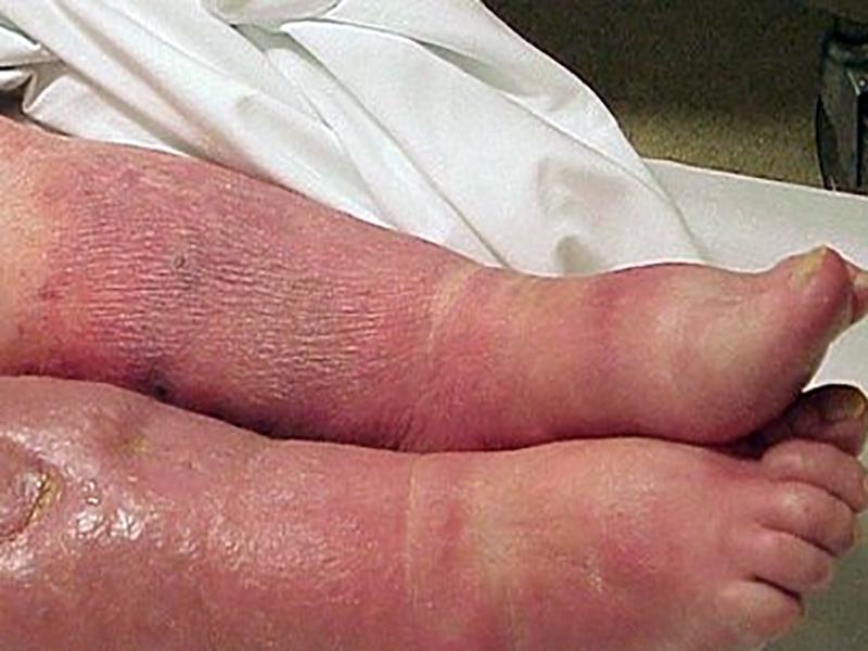 Sespis-III: una definizione che rivoluziona il concetto di sepsi per infermieri e medici