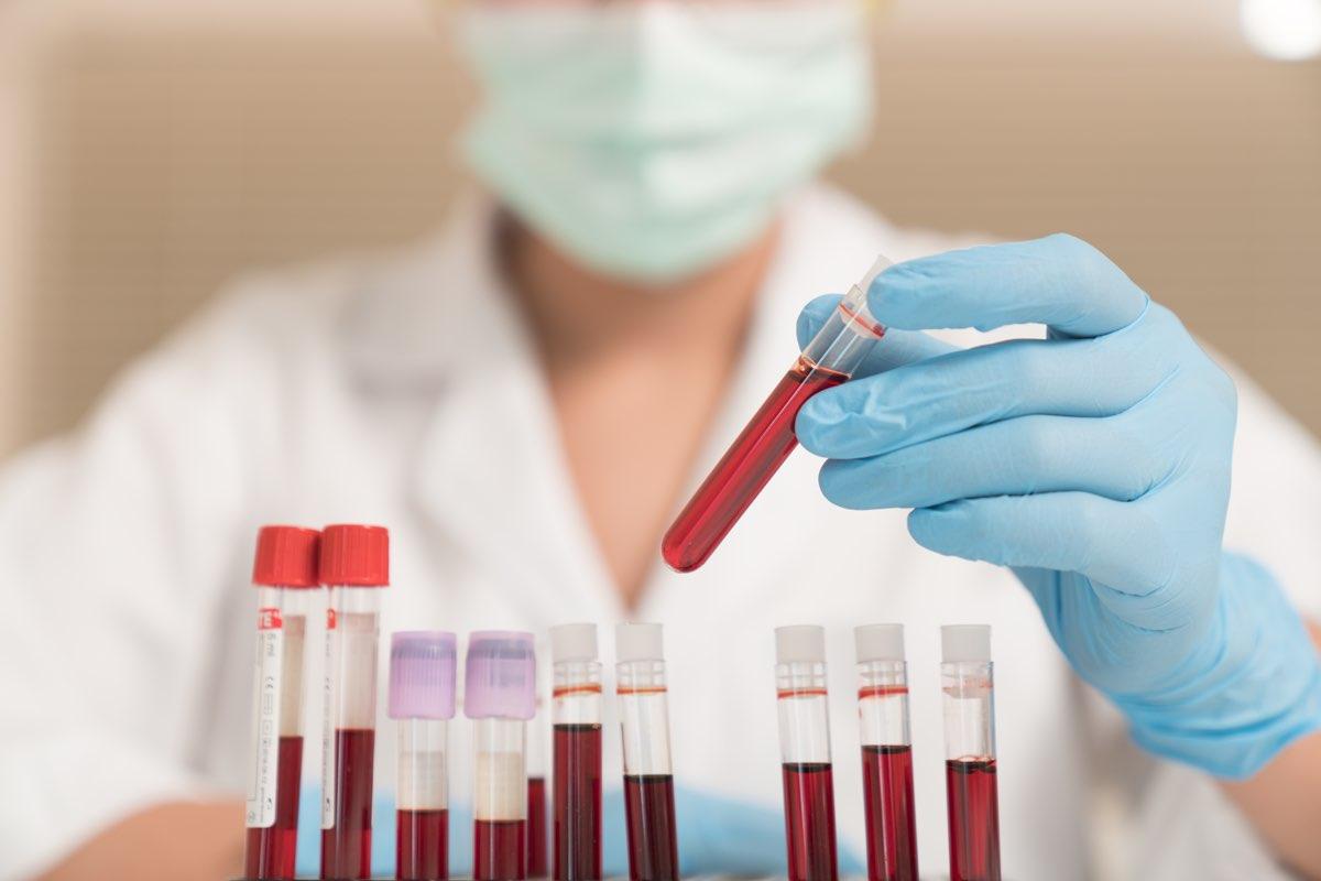 Proteina C reattiva (PCR) alta e valori normali.