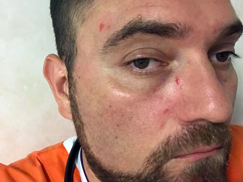 """Infermiere massacrato in PS denuncia aggressione su Facebook: """"non siamo carne da macello""""."""
