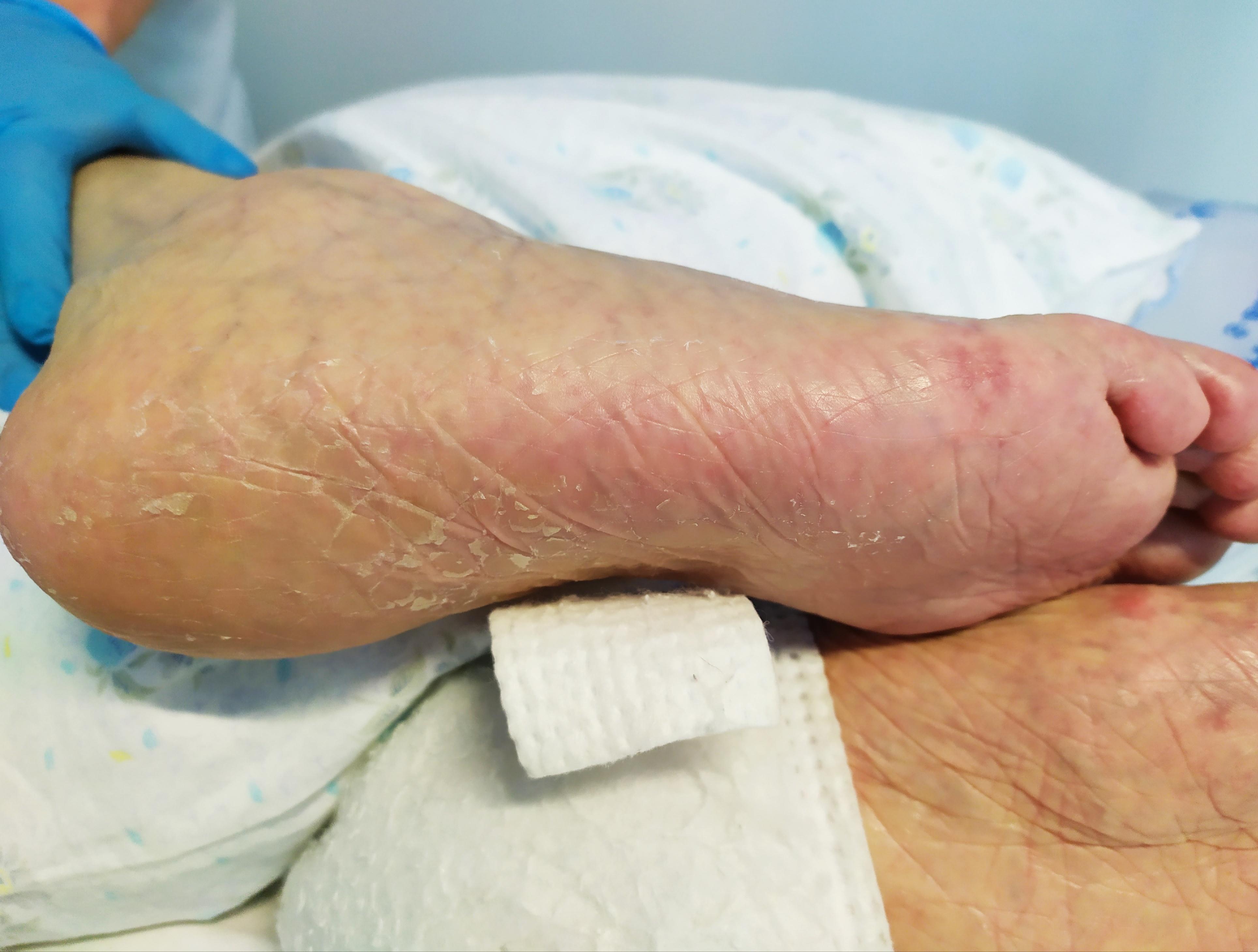 Wound Care e talloni: corso avanzato per Infermieri e Professionisti Sanitari.