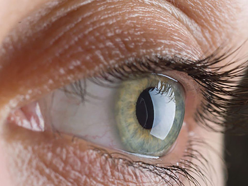 AIFA: l'Elmiron può creare maculopatia&ie pigmentosa. Medici e Infermieri devono informare i Pazienti.