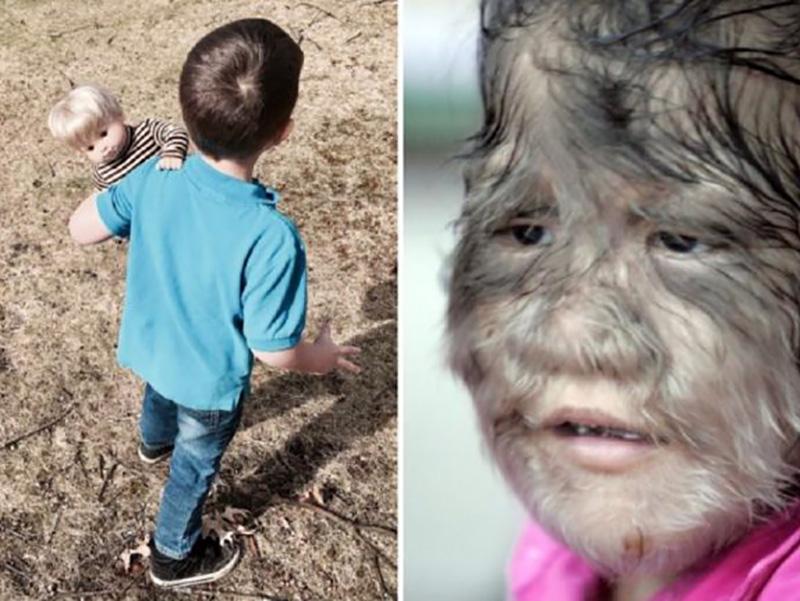 """Farmaco contaminato trasforma bambini in """"lupi mannari"""": l'irsutismo si presenta su tutto il corpo."""