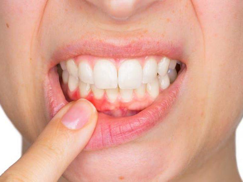 mucosite, parodontite, denti, bocca, igiene dentale