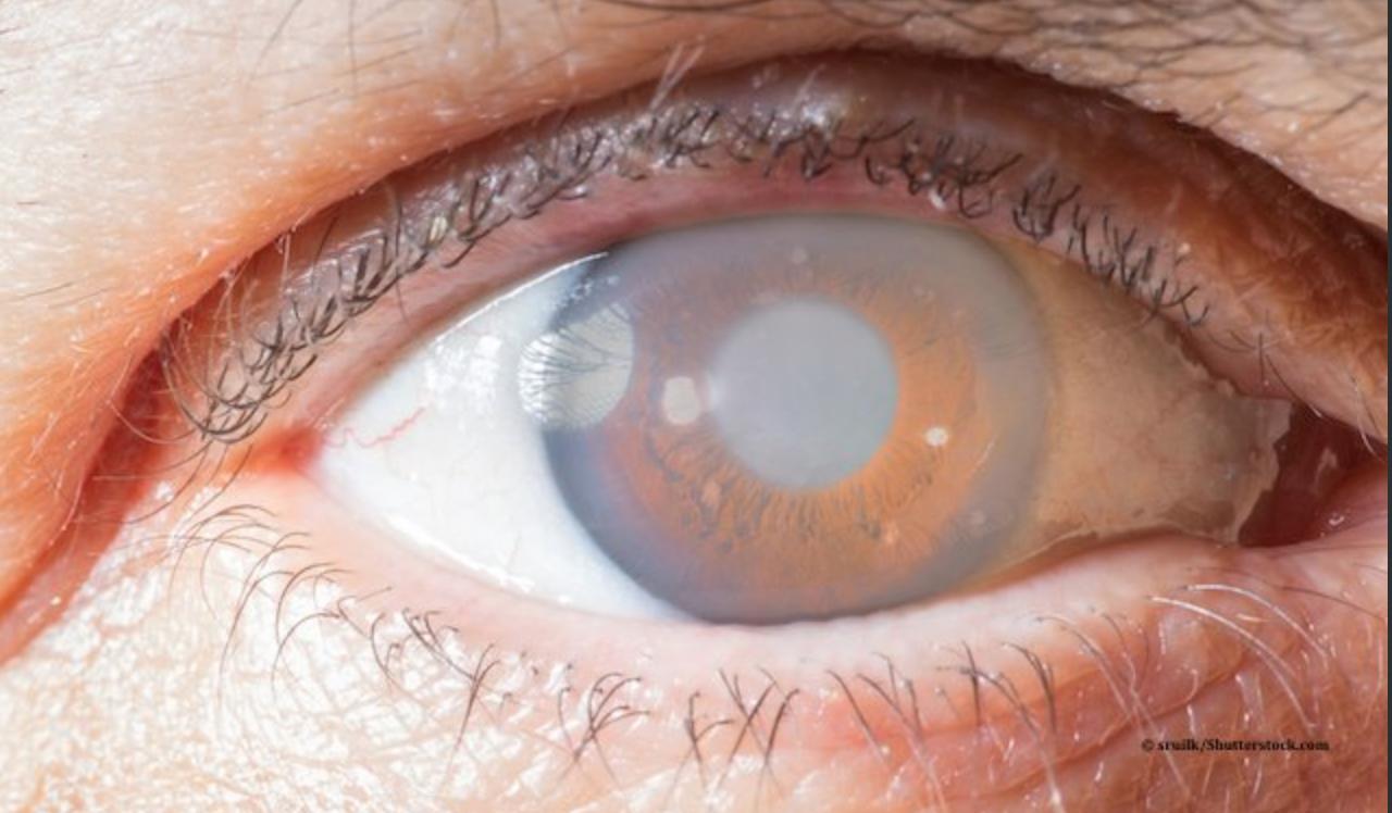 Glaucoma: non solo cannabinoidi. In arrivo nuovi farmaci!