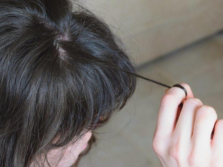 Oss aggredita da paziente: strappato cuoio capelluto!
