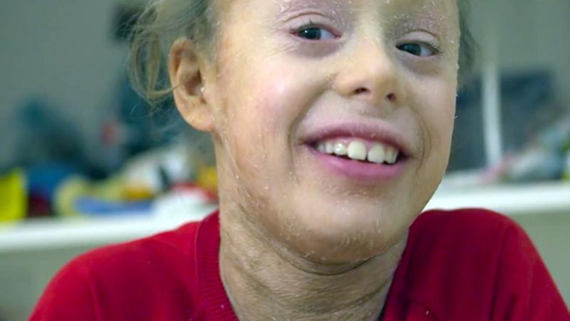 Ittiosi: la storia di Cloe, la bambina costretta a vivere idratata. Forse crema enzimatica la salverà.