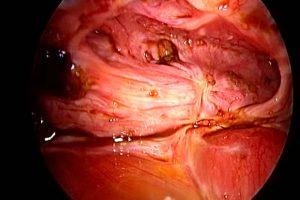 L'endometriosi è una patologia decisamente invalidante, che può portare a risvolti anche psicologici e psichiatrici.