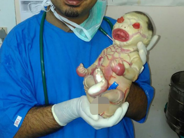 Ittiosi Arlecchino: patologia che porta spesso alla morte prematura del bambino o alla sua difficile sopravvivenza.