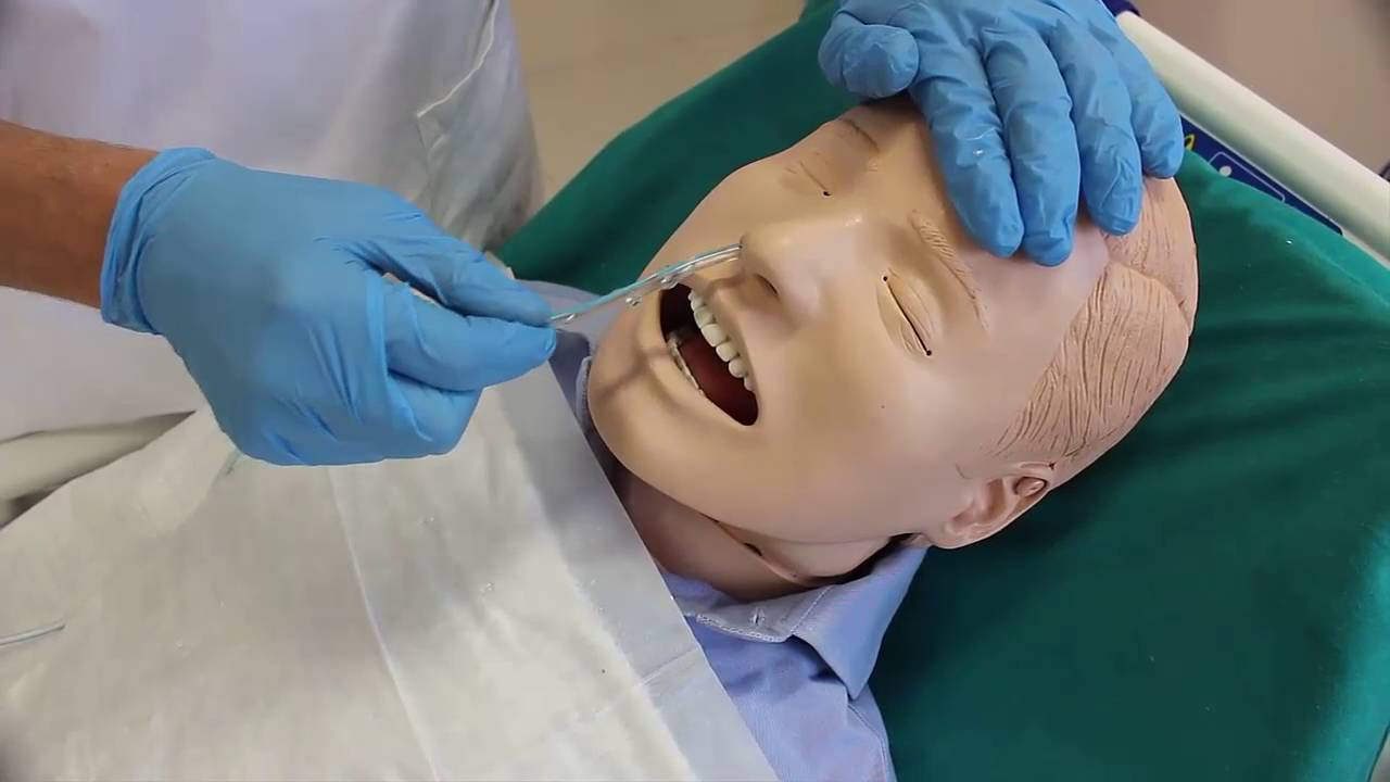 Posizionamento Sondino Naso Gastrico: il ruolo del Medico, dell'Infermiere e dell'OSS in presenza di corretta procedura.