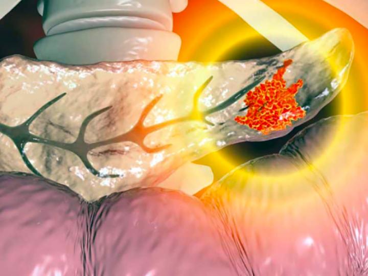 Management assistenziale nella persona con pancreatite acuta. Il ruolo dell'Infermiere.
