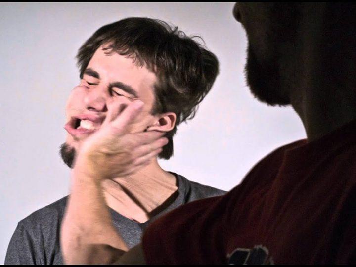 Oss somministra frullato con cannuccia: Infermiere lo riprende e lui lo schiaffeggia.