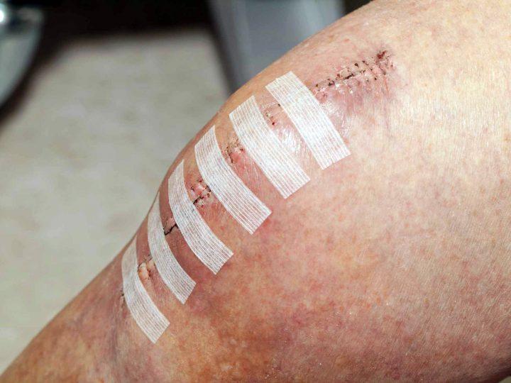 Gestione ferita chirurgica: prevenire complicanze ed infezioni.