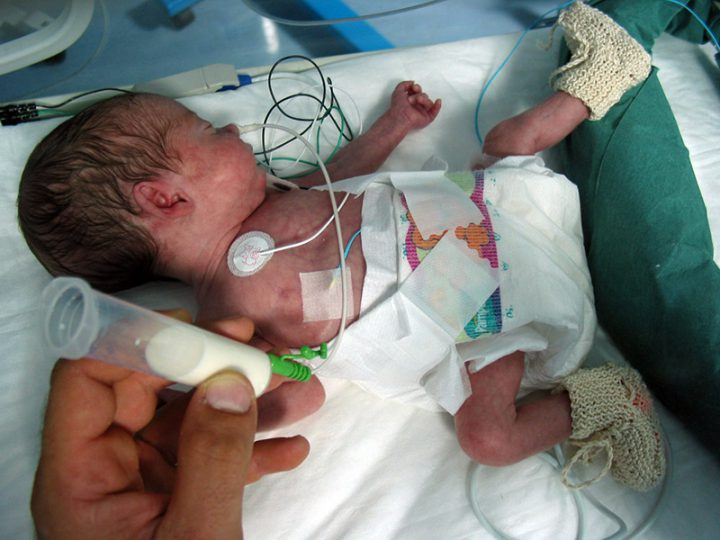 NIDCAP. Programma di cura personalizzato per il neonato prematuro in TIN.