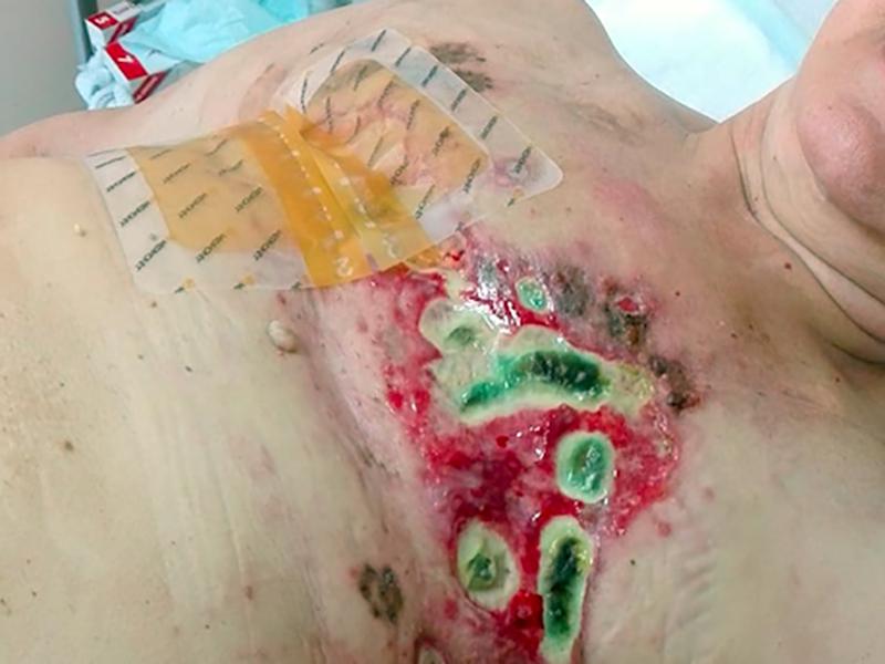 Medicazioni avanzate post-mastectomia e chemioterapia.