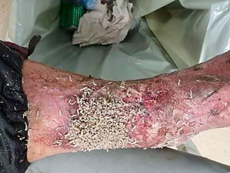 Una lesione di un arto inferiore invaso dalle larve d'insetto.