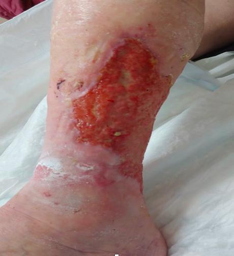 Una lesione da ustione chimica.