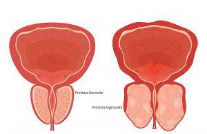prostata ingrossata e cibi da evitare