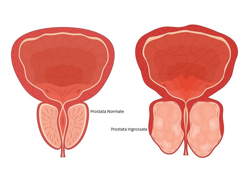 Prosztata adenoma spermogramma