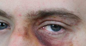 livido aldo massacrato violenza aggressione oss infermieri pronto soccorso