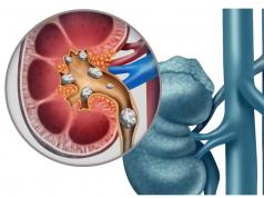 colica renale calcoli renali