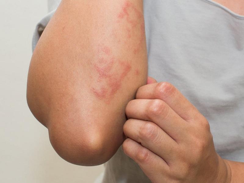 dermatite cause