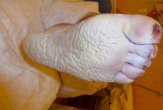Piede diabetico con lesioni ischemiche acrali con essudato abbondante.