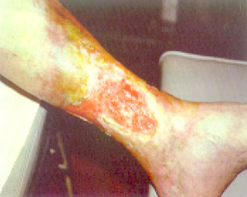 L'ulcera flebostatica non supera la fascia muscolare, il tessuto di granulazione è ben rappresentato, (spesso presenti la lipodermatosclerosi, le varici e scarsa sintomatologia algica).